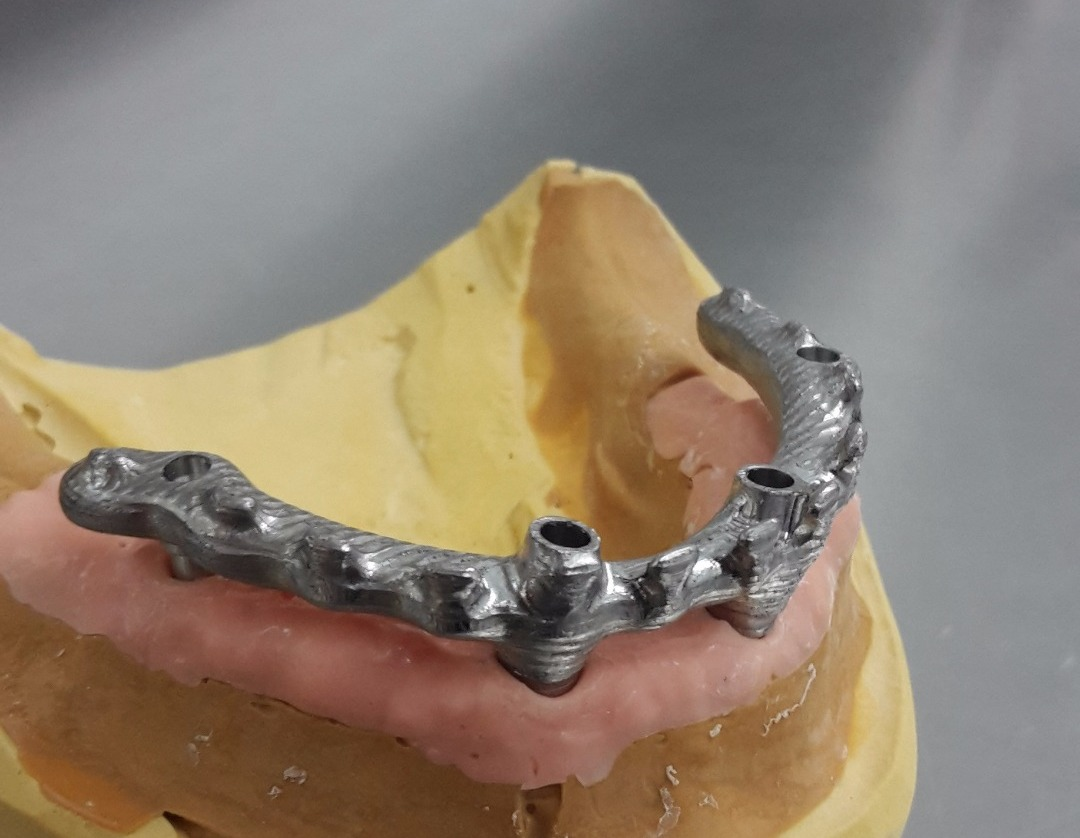 Milled bars @ Dundee dental